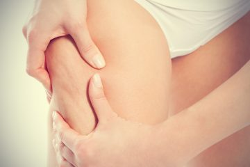 Cellulite Treatment Methods