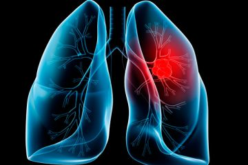best natural remedies for lung cancer