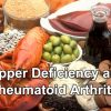 Copper Deficiency Rheumatoid Arthritis