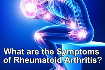 What are the Symptoms of Rheumatoid Arthritis